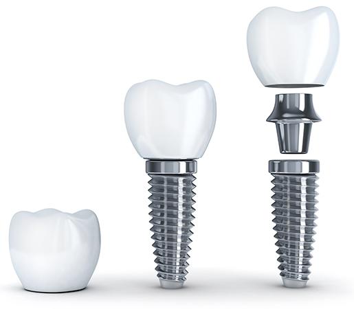 Implant dentaire Truchtersheim